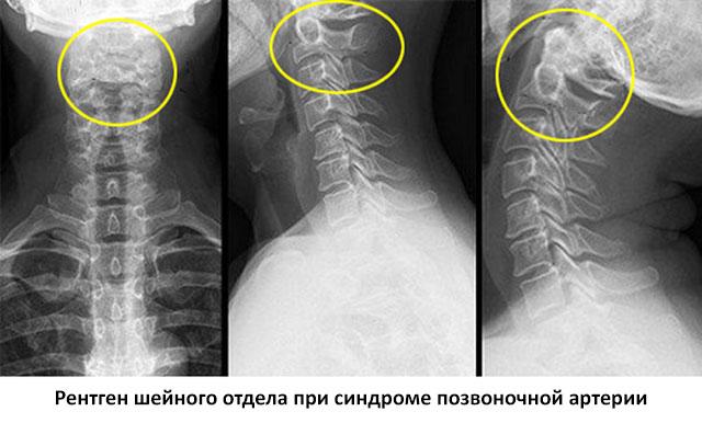 рентген при синдроме позвоночной артерии