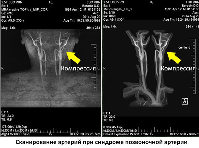 дуплексное сканирование артерий при синдроме позвоночной артерии
