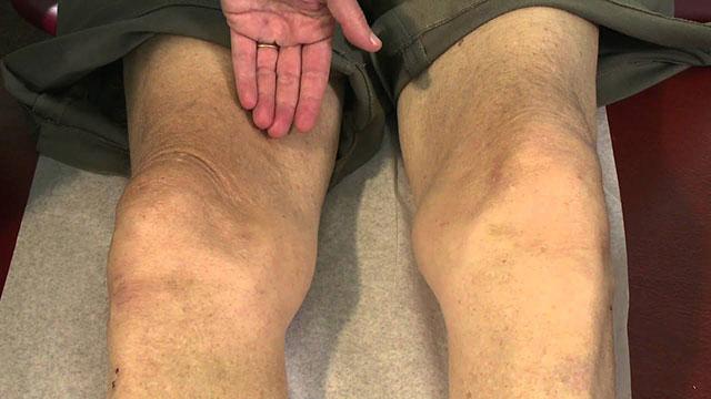 атрофия четырехглавой мышцы бедра