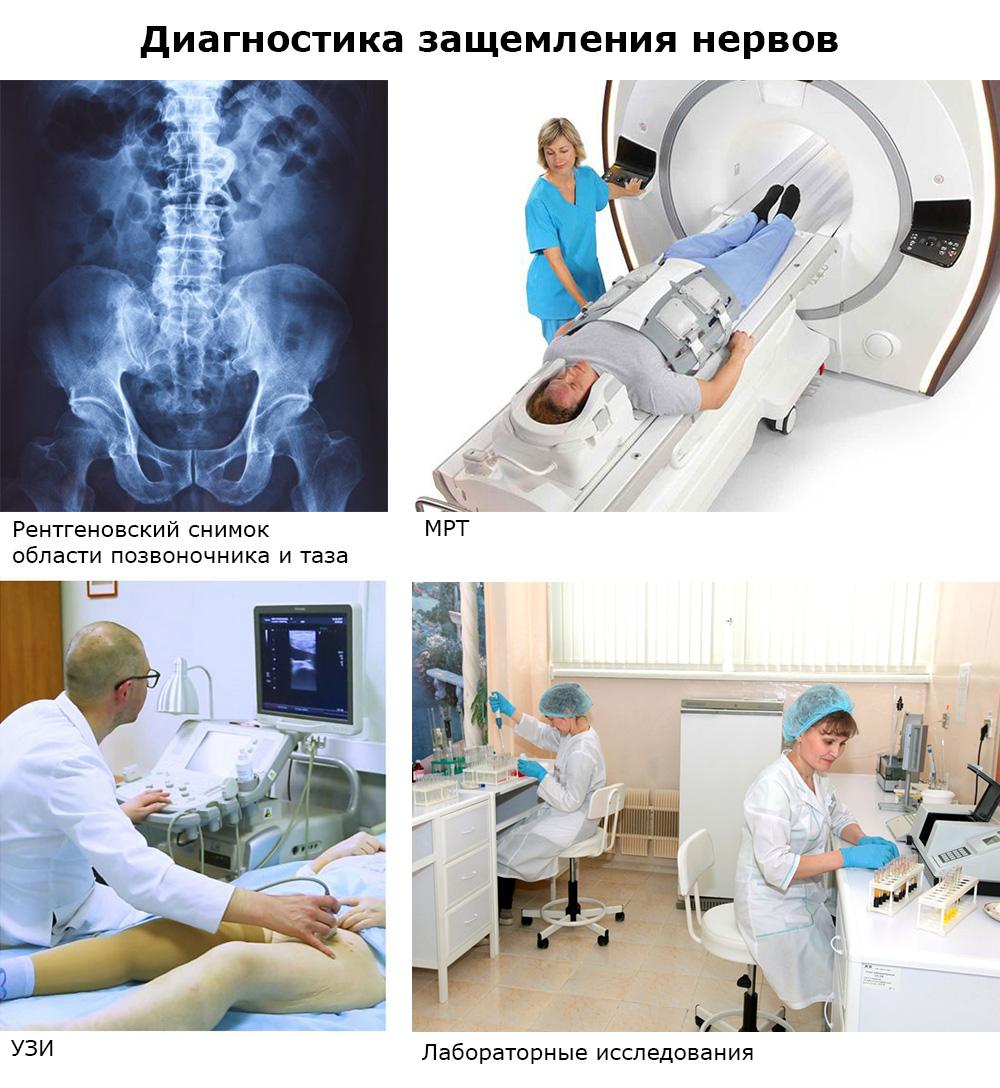 Ущемление бедренного нерва симптомы и лечение в домашних условиях thumbnail