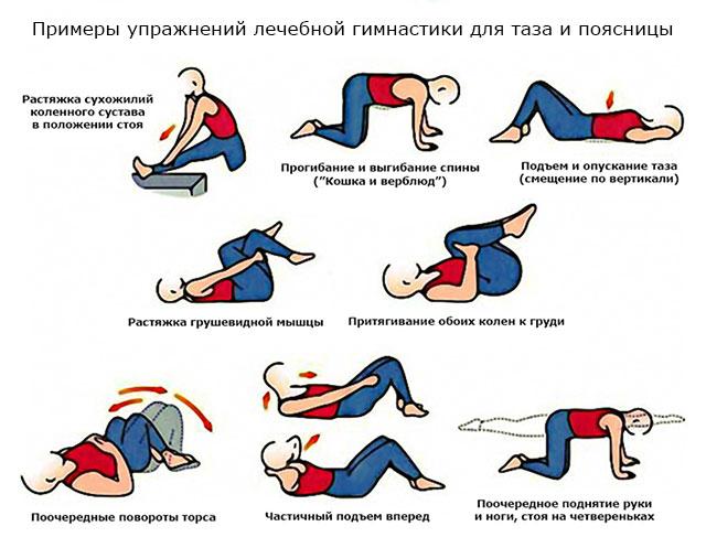 примеры упражнений лечебной гимнастики для таза и поясницы