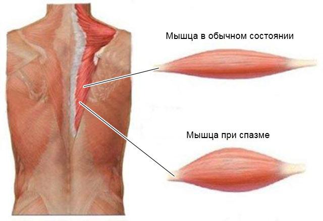 мышца при спазме