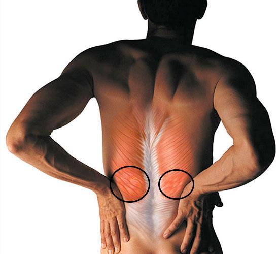 спазм мышц в поясничном отделе