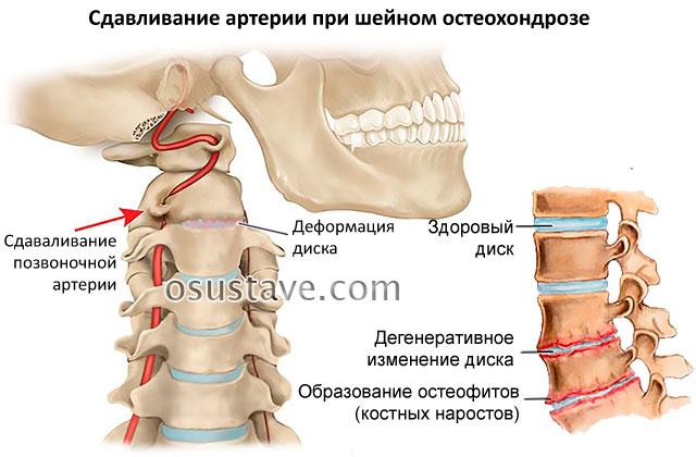 Ком и боль в горле при шейном остеохондрозе