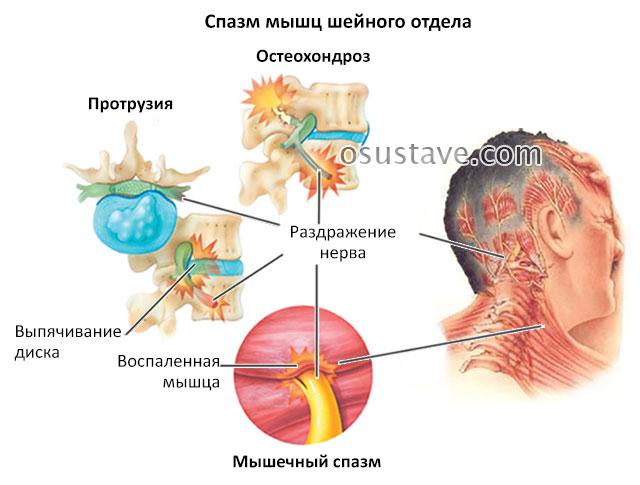 спазм мышц шейного отдела