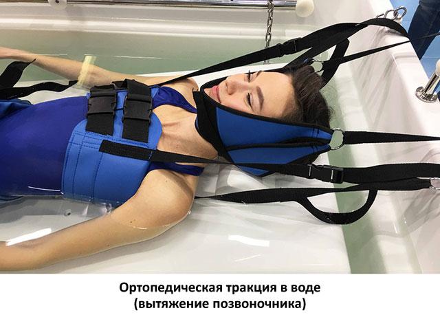 ортопедическая тракция шейного отдела позвоночника