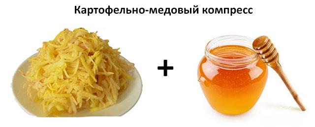 картофельно-медовый компресс