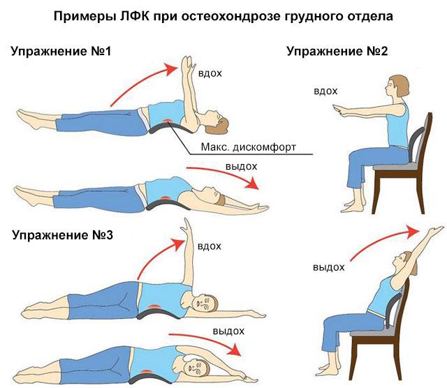 примеры ЛФК при остеохондрозе грудного отдела