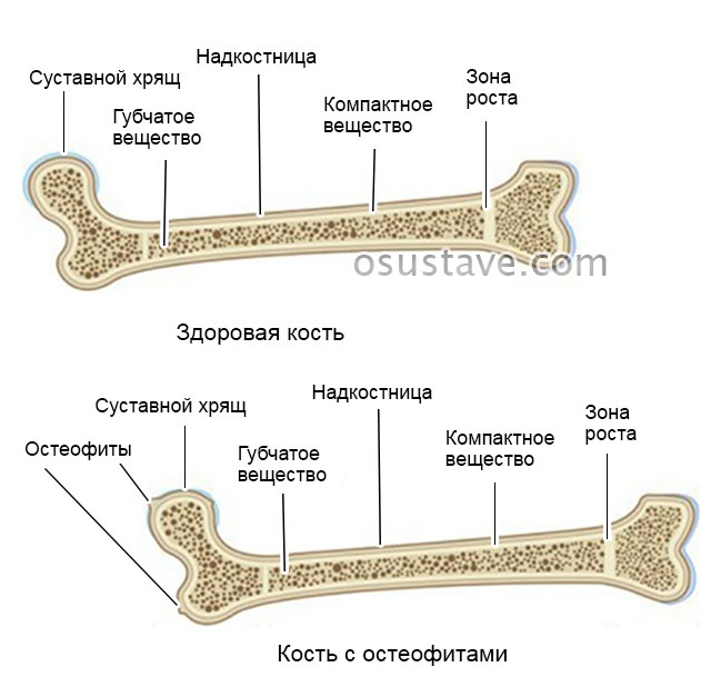 здоровая кость и с остеофитами