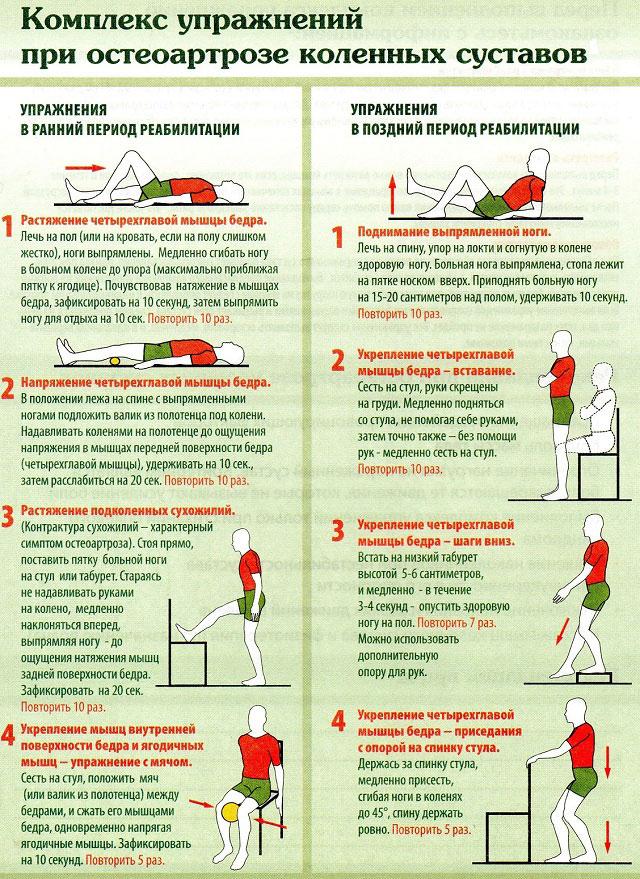упражнения ЛФК для коленного сустава при остеоартрозе