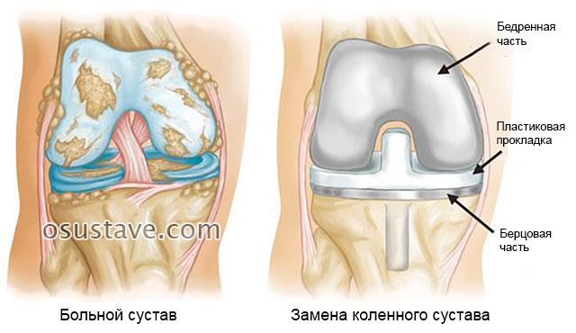 пораженный артрозом коленный сустав и эндопротезирование колена