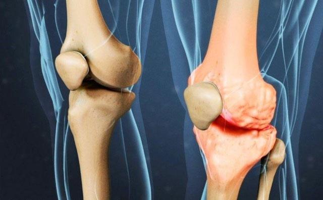 здоровый коленный сустав и с остеофитами