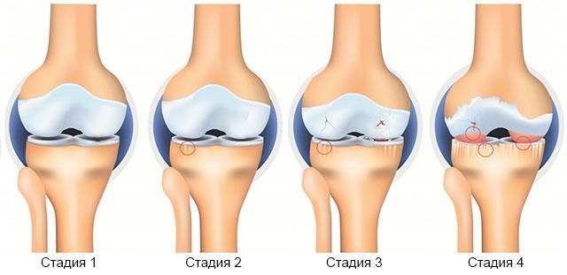 4 стадии остеоартроза