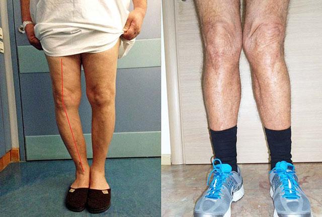 поражение коленей остеоартрозом