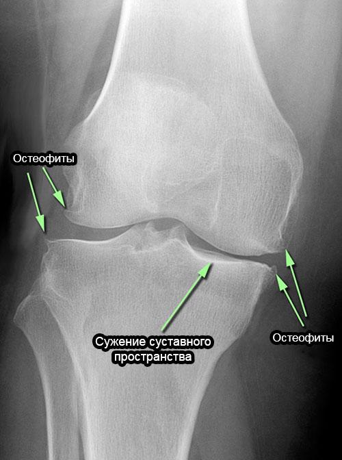 рентген коленного сустава с остеофитами