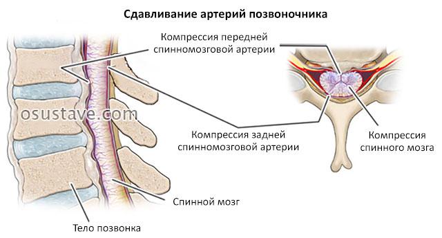 сдавливание артерий позвоночника