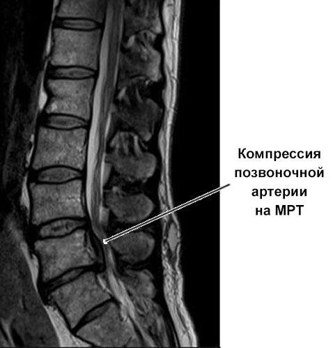 МРТ позвоночника с компрессионной артерией