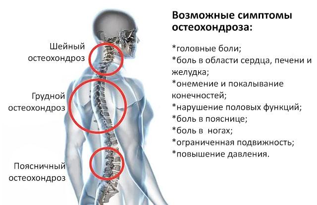 возможные симптомы остеохондроза