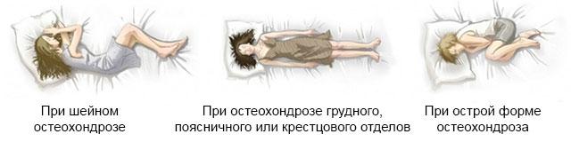 правильные положения для сна при разных формах остеохондроза