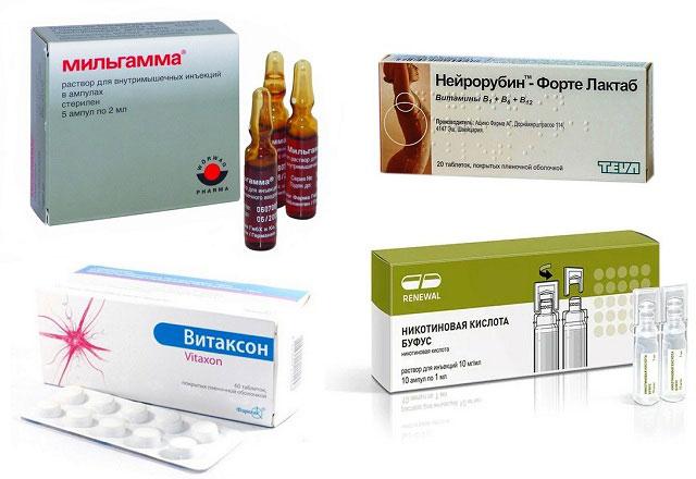 препараты Мильгамма, Нейрорубин, Витаксон, Никотиновая кислота