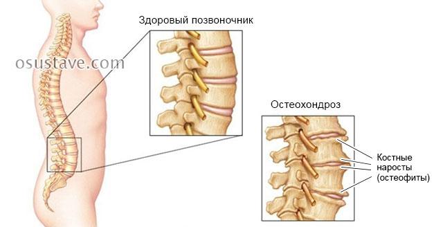 остеофиты при остеохондрозе