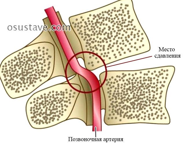 сдавление позвоночной артерии смещенным позвонком