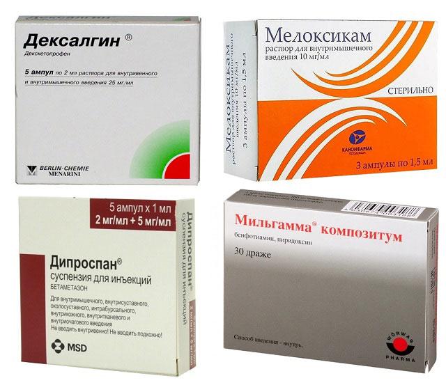 препараты Дексалгин, Мелоксикам, Дипроспан, Мильгамма