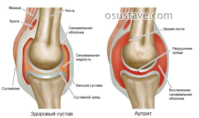 изменения в суставе при артрите (поражение коленного сустава)