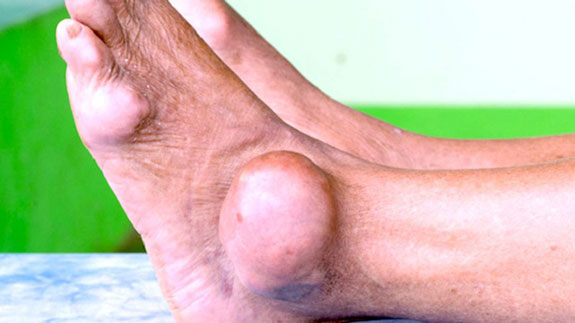 внешнее проявление подагры голеностопа