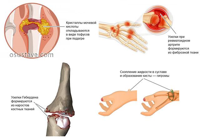 анатомия наростов на пальцах рук