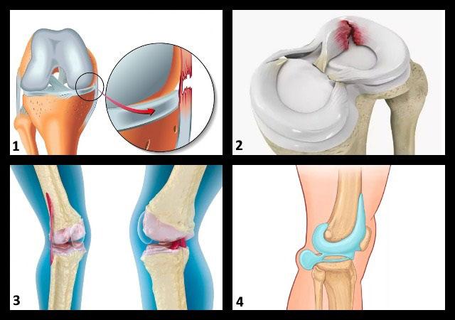 патологии коленного сустава, которые можно увидеть на МРТ