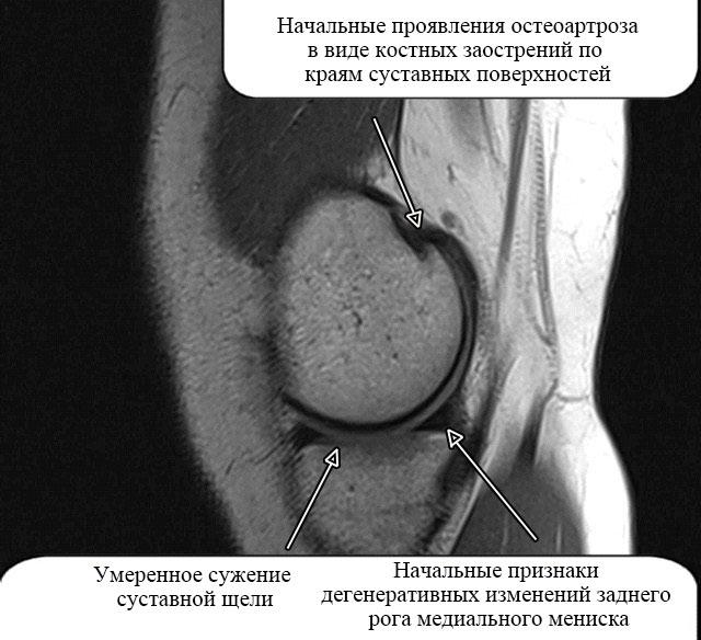 МР-картина остеоартроза коленного сустава