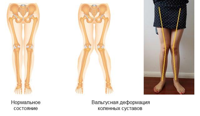 сравнение нормальных коленных суставов и с вальгусной деформацией