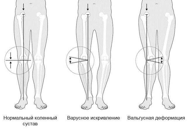 нормальное колено, с варусным искривлением и вальгусной деформацией