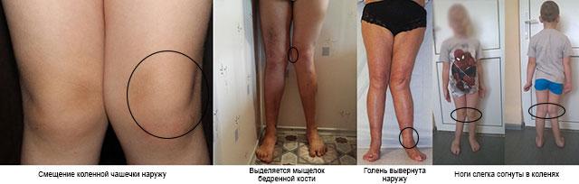 симптомы вальгусной деформации