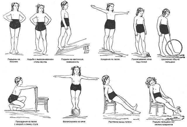 примеры упражнений ЛФК при вальгусной деформации