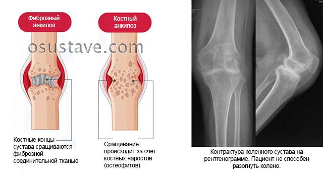 анкилоз и контрактура коленного сустава