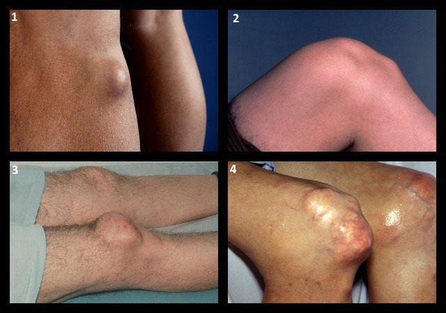 шишки в области коленных суставов