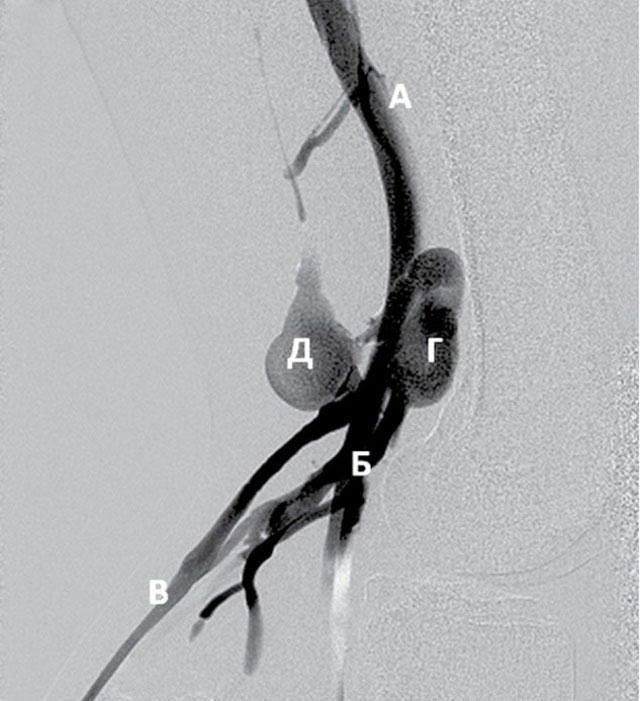 аневризма ветвей подколенной и поверхностной бедренной вены