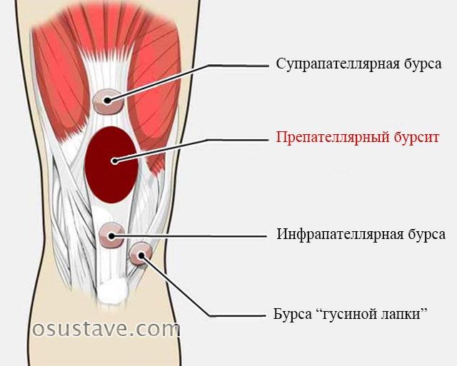 Уплотнение под коленом не болит thumbnail