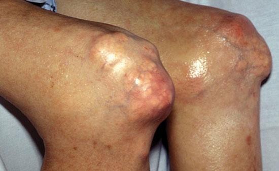 множественные тофусы в области коленных суставов у пациента с подагрой