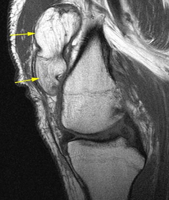 липома коленного сустава на МРТ