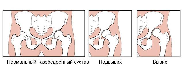 подвывих и вывих тазобедренного сустава