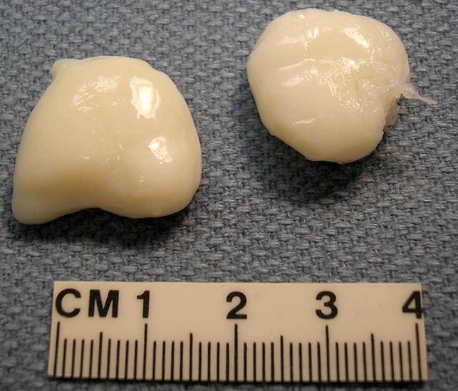 примеры суставной мыши
